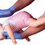 Atragantamiento en bebés y niños